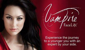 Vampire Facelift Main Pic