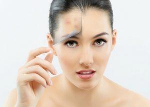 Exfoliate+acne+prone+skin